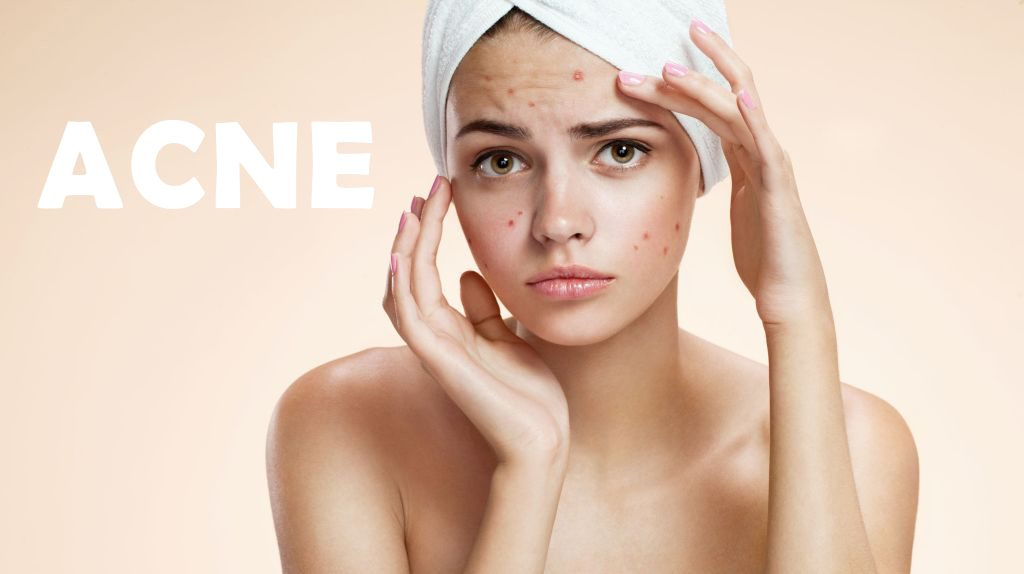 WHAT YOU REALLY NEED TO KNOW ABOUT ACNE TREATMENTS
